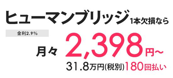 ヒューマンブリッジ1本欠損なら月々3100円〜分割払い